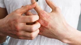 Eczema: laboratorio de San Diego destina 400 mdd para combatirlo