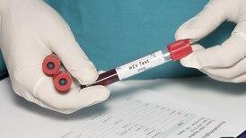 Científicos logran erradicar el VIH con trasplante de células madre